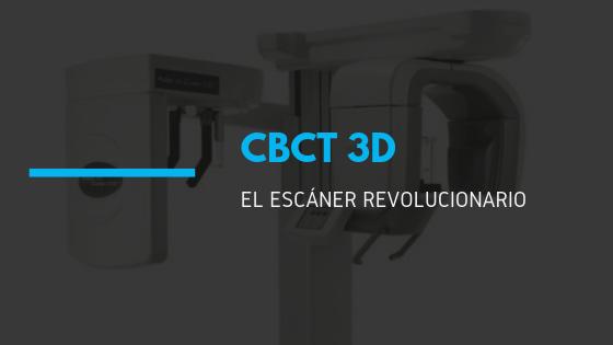 CBCT 3D UEDA