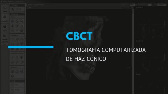 tomografia computarizada ueda tecnologia dental