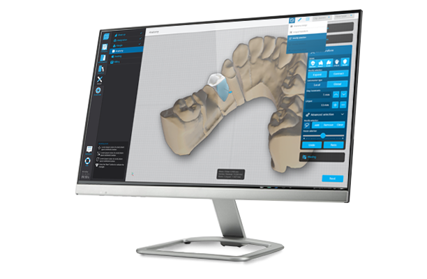 dwos Chairside cad ueda tecnologia dental