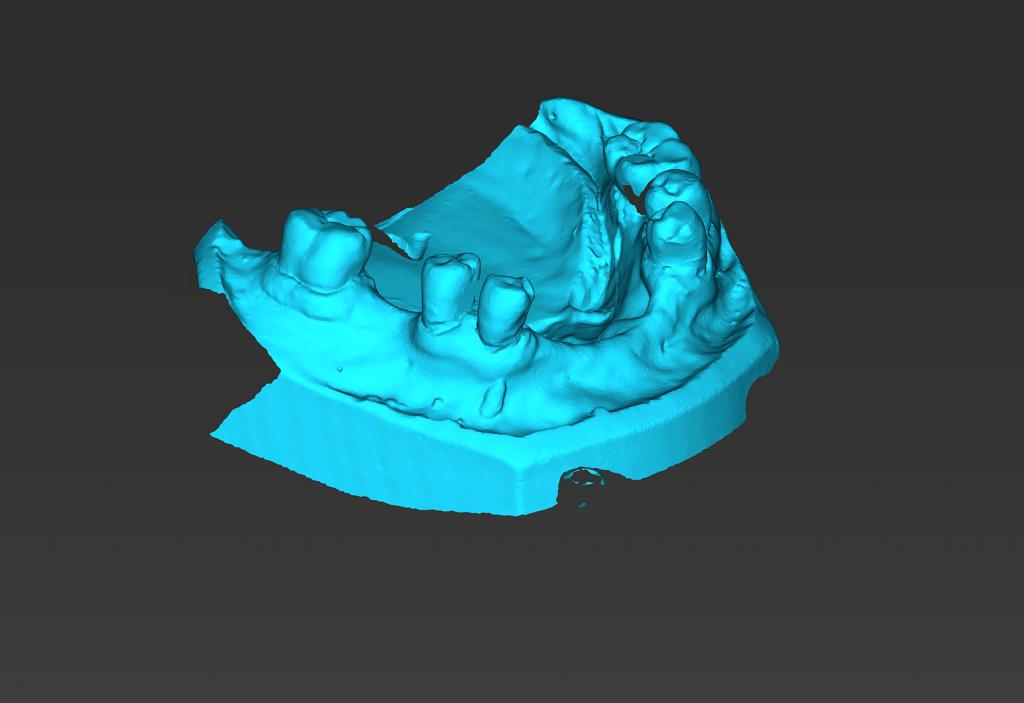 slideco ueda tecnologia dental