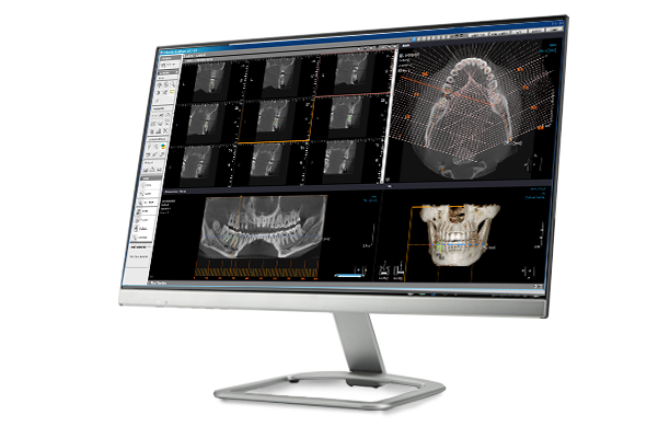 Implant Simulation UEDA